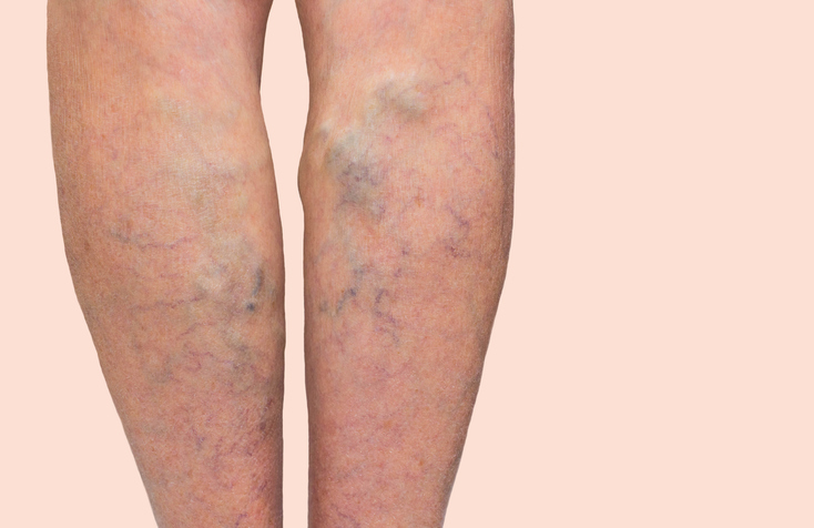 swelling legs varicose veins